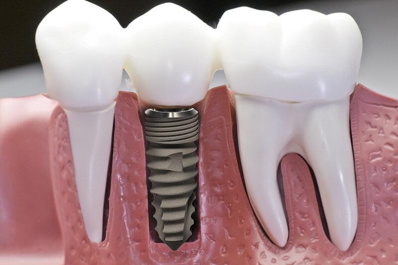3 phương pháp trồng răng phổ biến nhất hiện nay