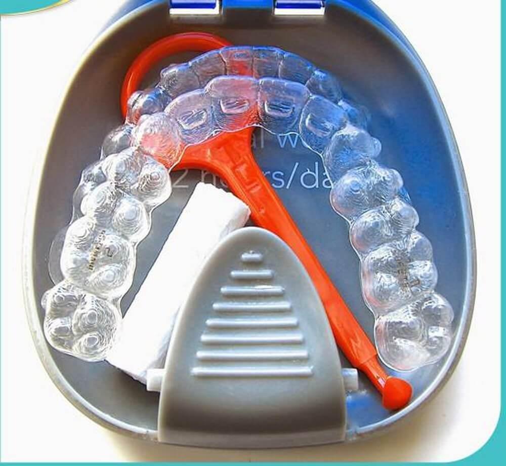 4 cách vệ sinh khay niềng răng invisalign đơn giản nhất