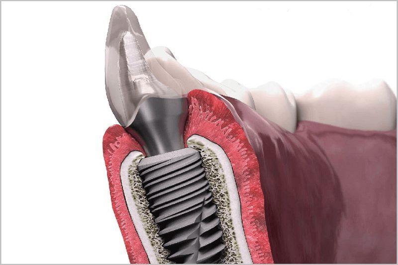 4 loại trụ Implant tốt nhất hiện nay
