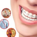 7 lưu ý nhất định phải biết khi niềng răng