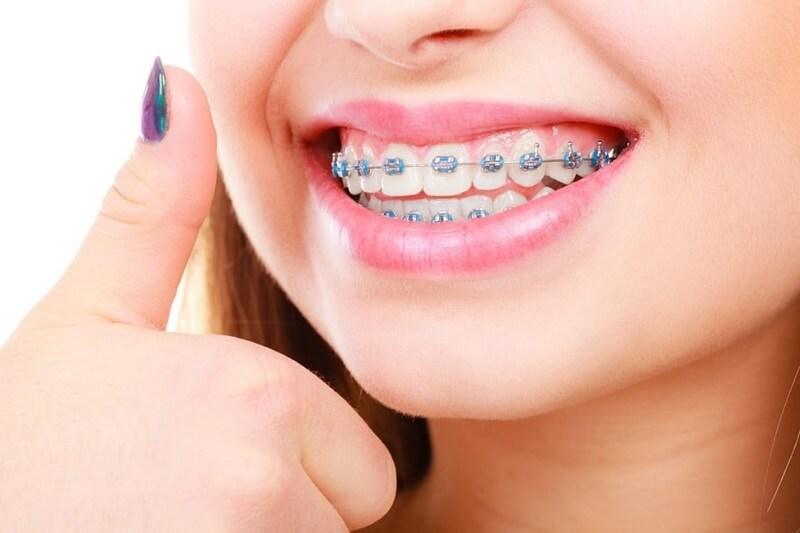 Mách bạn 9 cách làm giảm đau khi niềng răng hiệu quả nhất