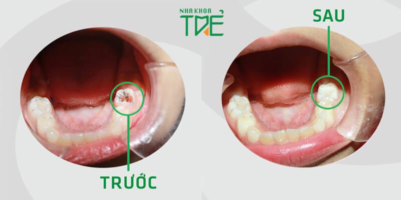 Tại sao răng bị nứt? Cách khắc phục răng nứt như thế nào?