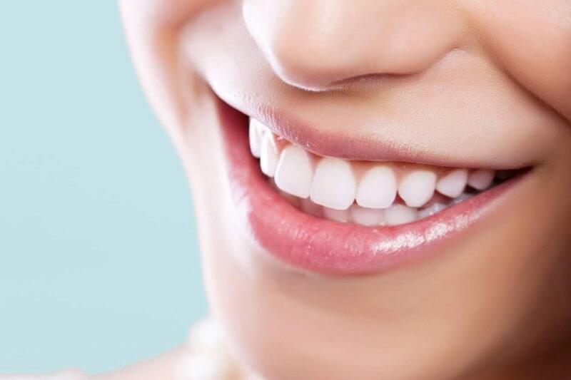 Bọc răng sứ có phải lấy tủy hay không