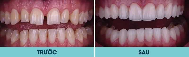 Khi nào cần bọc răng sứ?