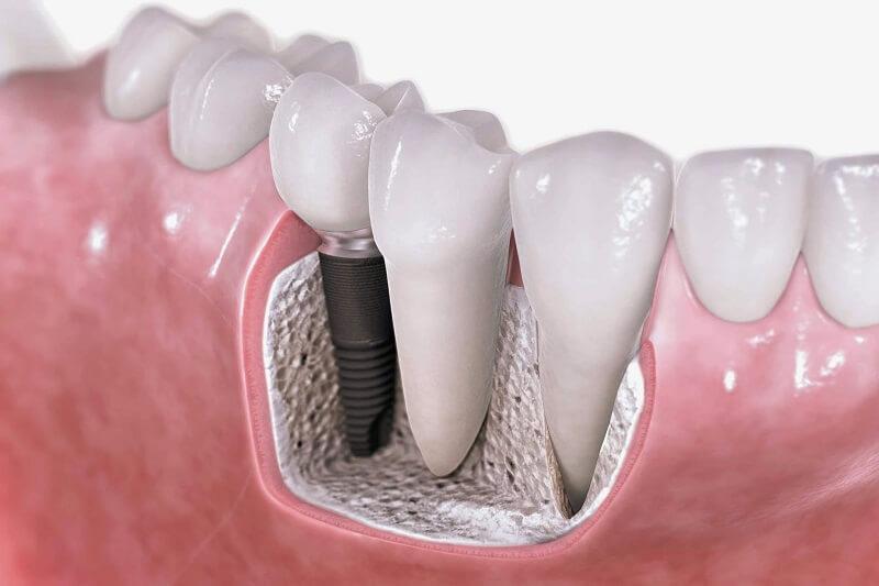 Những điều cần biết khi ghép xương răng trong cấy ghép Implant