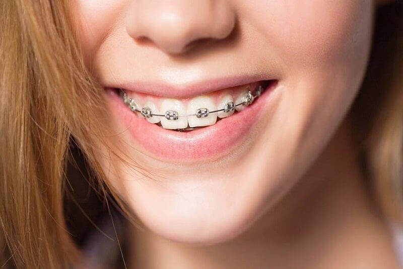 Mách bạn 5 cách vệ sinh răng niềng hiệu quả nhất