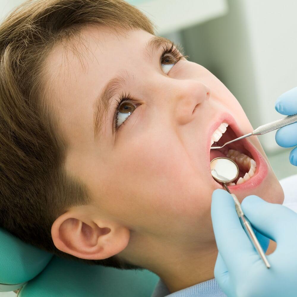 Nguyên nhân, tác hại, cách điều trị sâu răng ở trẻ em