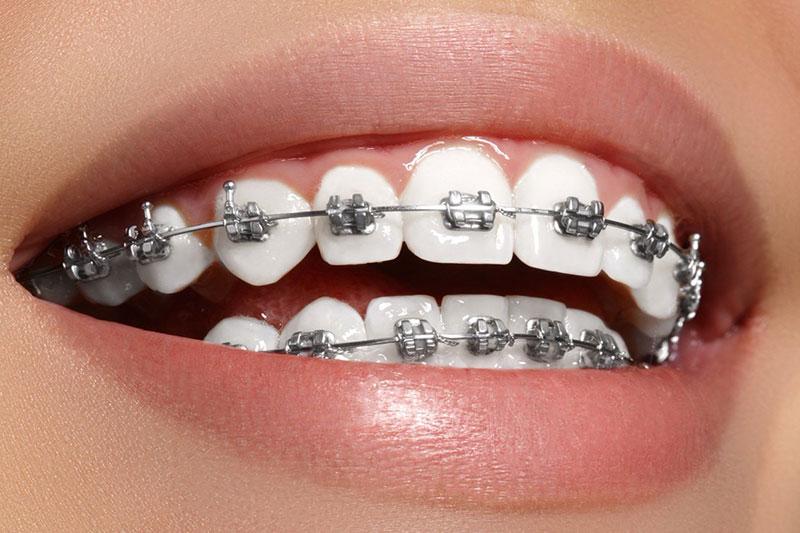 Những điều cần biết về niềng răng mắc cài kim loại