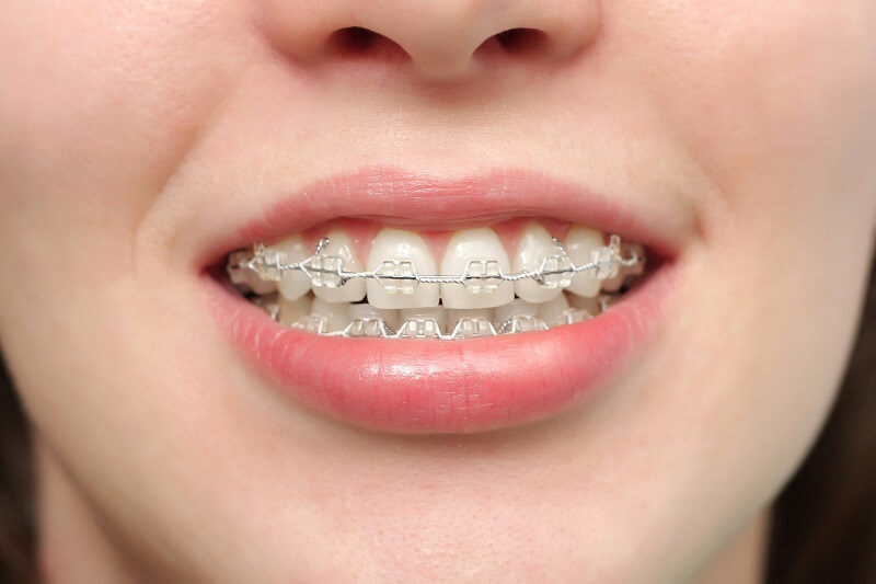 Niềng răng mắc cài sứ - Ưu và nhược điểm