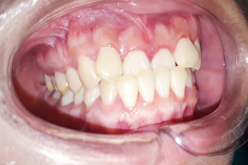 Niềng răng người lớn có điểm gì khác với niềng răng trẻ em?