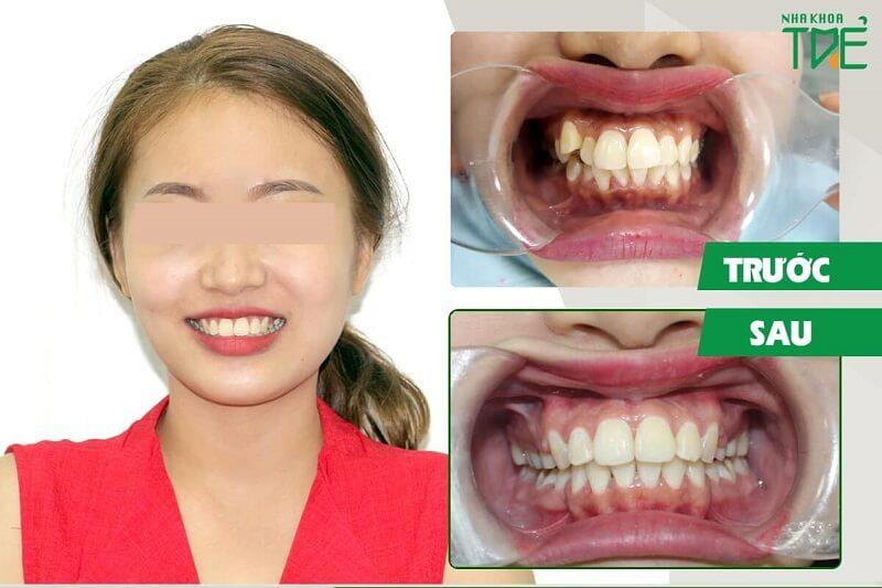Kết quả niềng răng trong suốt Invisalign tại Nha Khoa Trẻ