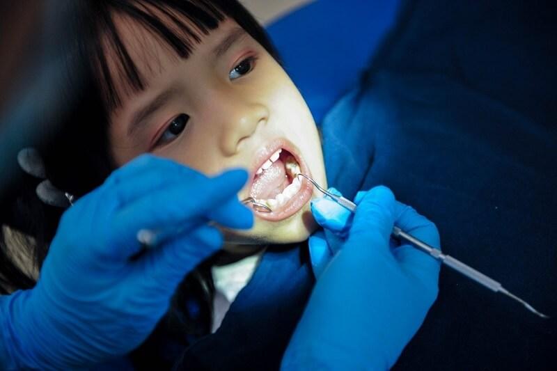 Răng vĩnh viễn mọc lên trước khi nhổ răng sữa khiến răng mọc lẫy