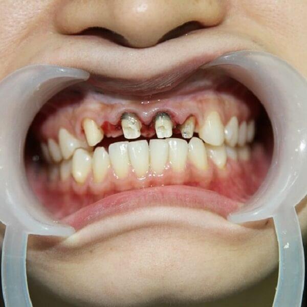 Răng sứ hỏng là do đâu và cách khắc phục như thế nào?