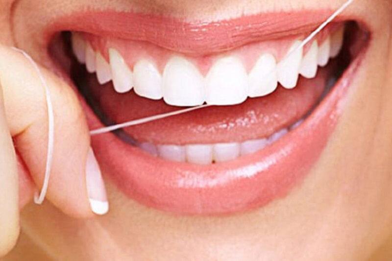 Thời gian bao lâu để hoàn tất niềng răng Invisalign