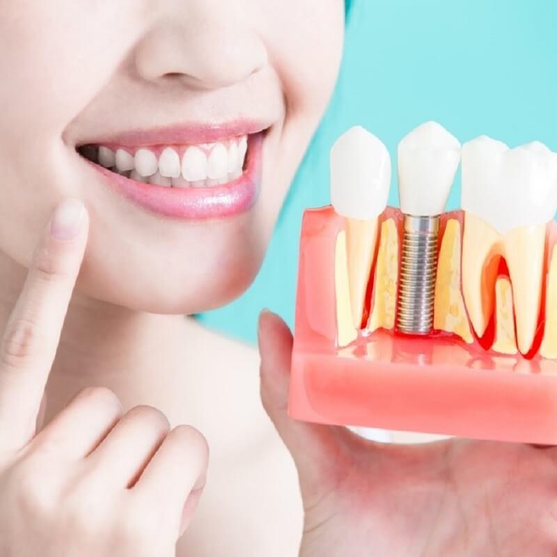 Thời gian bao lâu để hoàn cấy trồng răng Implant
