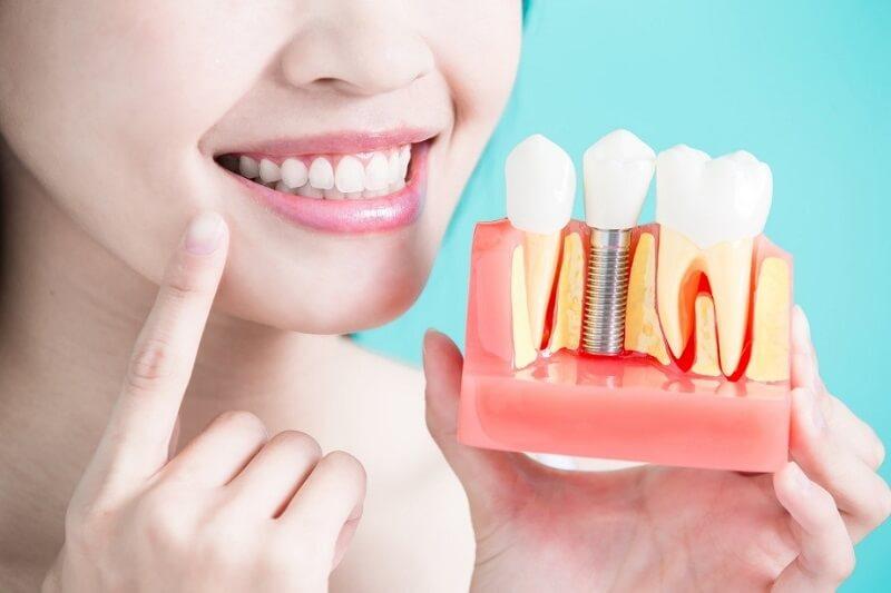 Thời gian bao lâu để hoàn tấy trồng răng Implant