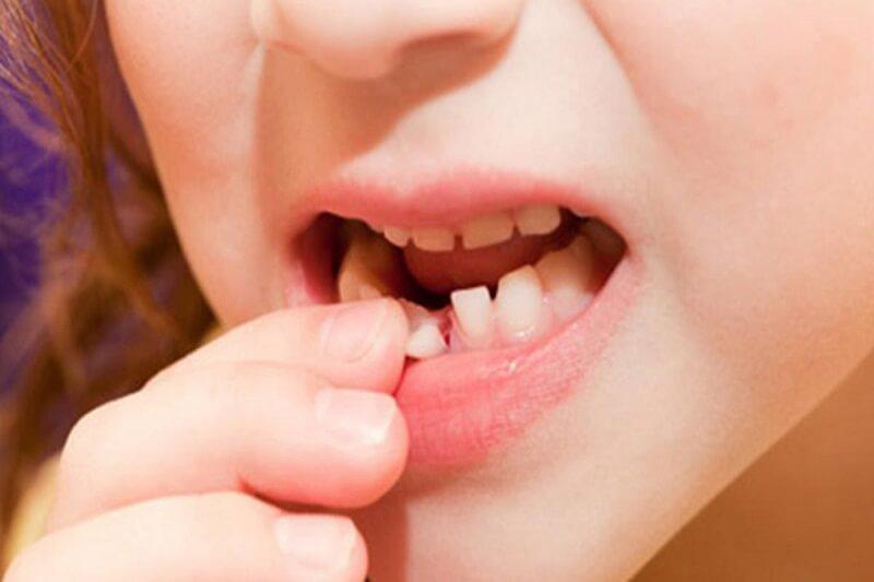 Trẻ em thay bao nhiêu răng? Trình tự thay răng sữa