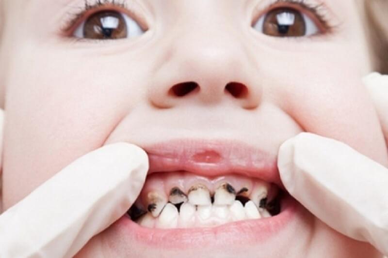 Trẻ em thay bao nhiêu răng? Trình tự thay răng sữa như nào?