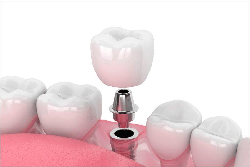 Trồng răng Implant có gây ra hôi miệng hay không?