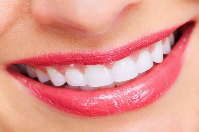 ưu điềm và nhược điểm của bọc răng sứ