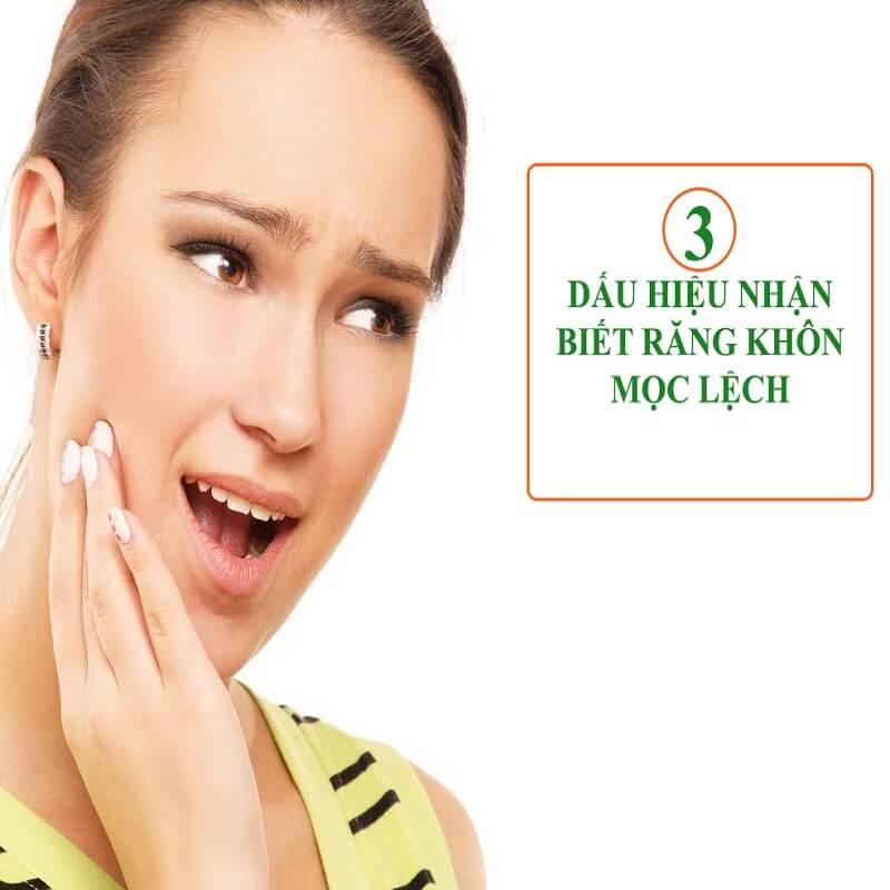 3 dấu hiệu nhận biết răng khôn mọc lệch nhất định phải biết