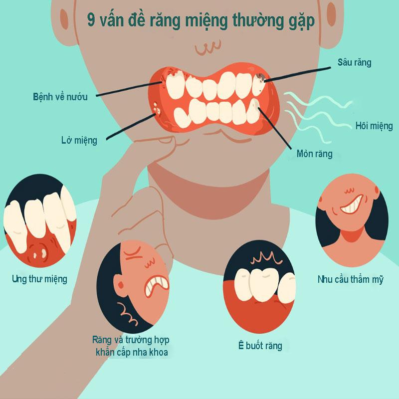 9 vấn đề răng miệng thường gặp và cách điều trị hiệu quả