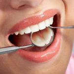 Tại sao cần bọc răng sứ cho răng chữa tủy?