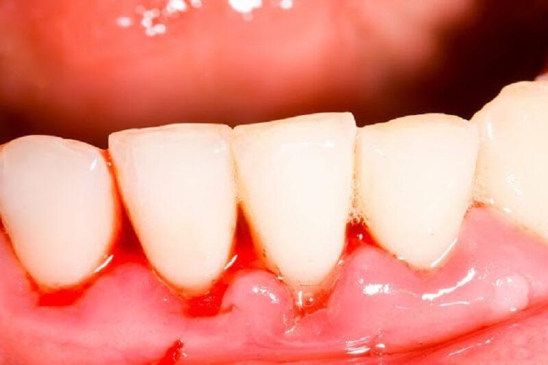 Áp xe răng là gì? Áp xe răng có nguy hiểm không?