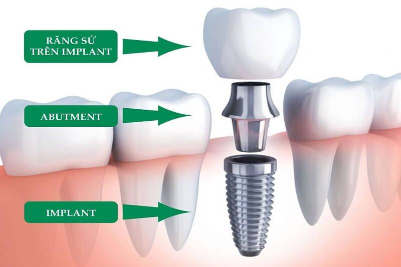 Bao nhiêu tuổi thì có thể trồng răng Implant