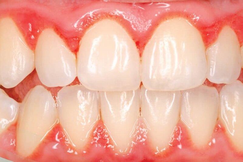 Bọc răng sứ bị viêm lợi phải khắc phục như thế nào?