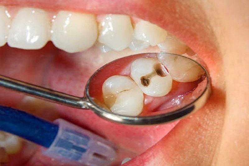 Bọc răng sứ cho răng sâu có cần thiết không?
