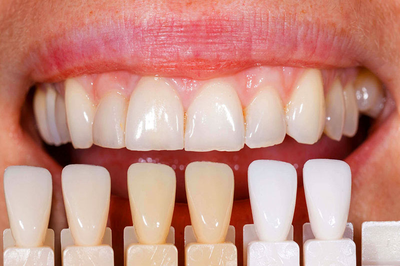 Bọc răng sứ cho răng sứt mẻ có hiệu quả không?
