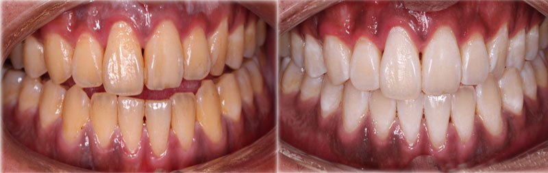 Nhiễm màu răng phải làm sao?