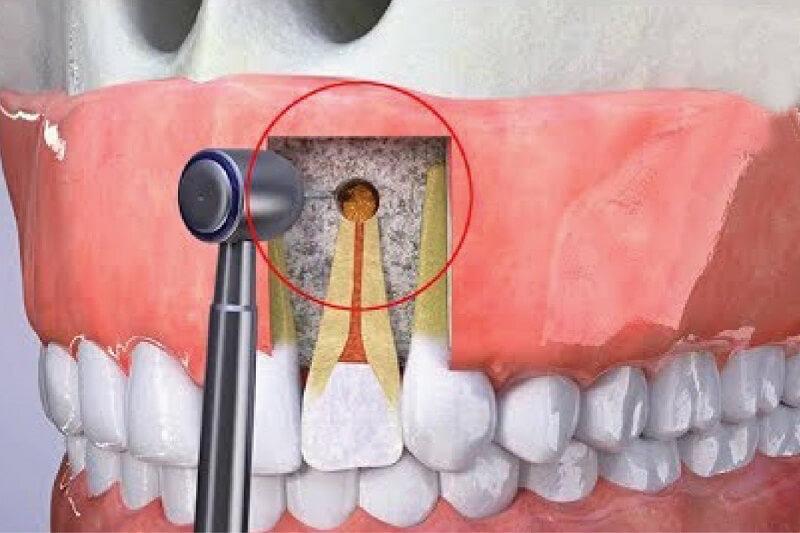 Cắt chóp răng điều trị viêm nhiễm hạn chế được việc nhổ răng