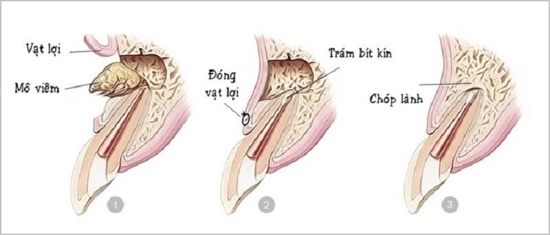 Cắt chóp răng là gì và áp dụng cho trường hợp nào?