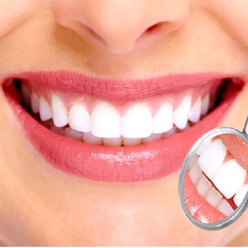 Có nên bọc răng sứ cho răng thưa hay không?