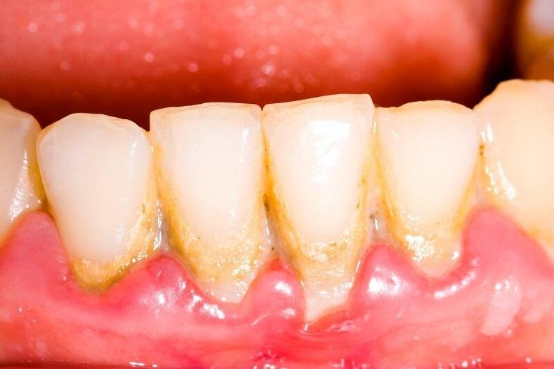 Có nên lấy cao răng cho trẻ em không?