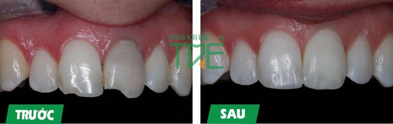 Còn chân răng có trồng răng được không?