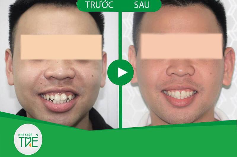 Đàn ông có cần niềng răng không?