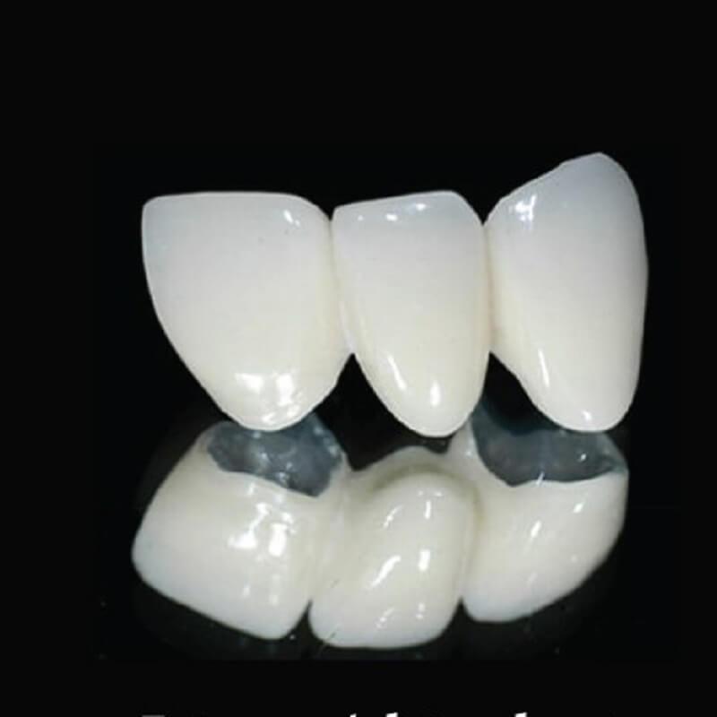 Điểm khác biệt giữa răng sứ kim loại và không kim loại