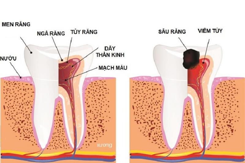 Điều trị sâu răng ở người lớn hiệu quả