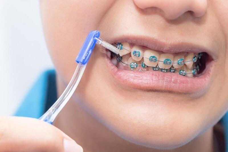 Vệ sinh răng bằng bàn chải chuyên dụng