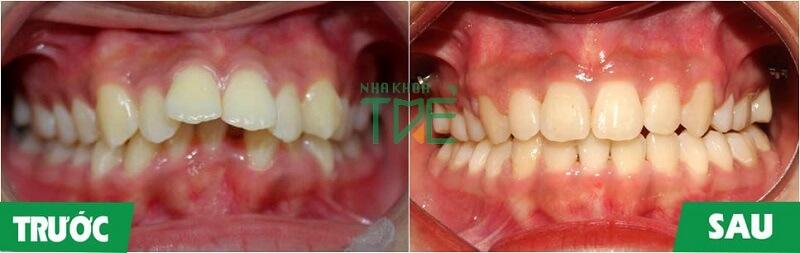 Hóp má khi niềng răng – Nguyên nhân và cách khắc phục