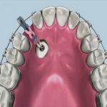 Răng nanh mọc ngầm trong xương hàm khắc phục như thế nào?
