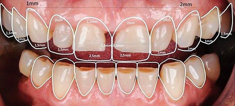 Kỹ thuật mài cùi răng đúng chuẩn đẹp và an toàn