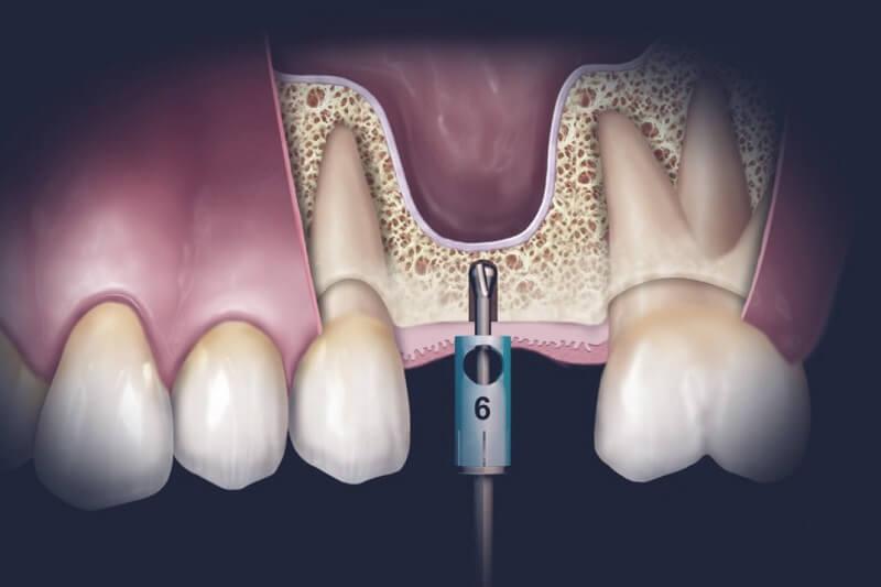 Kỹ thuật nâng xoang trong cấy ghép Implant như thế nào?