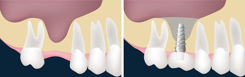 Nâng xoang trong cấy ghép Implant nhằm bổ sung xương giúp ca trồng răng thành công