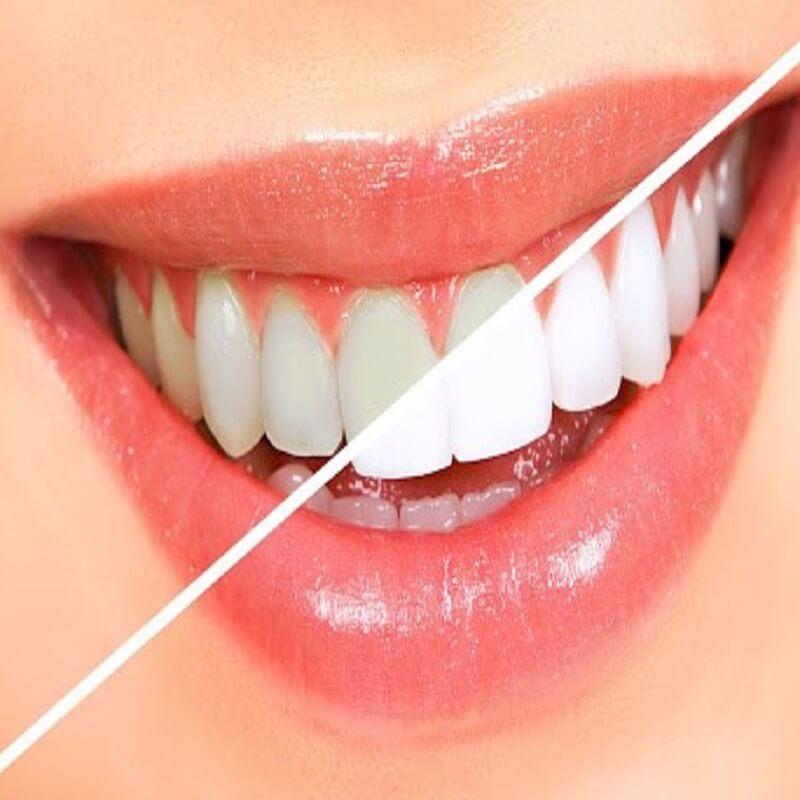 Lợi ích của tẩy trắng răng công nghệ Laser Đức