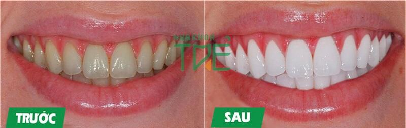 Tẩy trắng răng nhanh chóng và an toàn bằng công nghệ Laser Đức