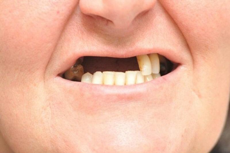 Mất nhiều răng phải làm sao để phục hồi